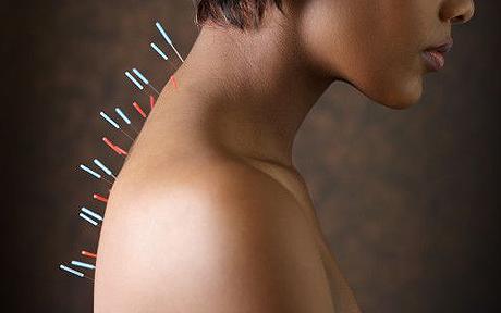 74596828 / Acupuncture
